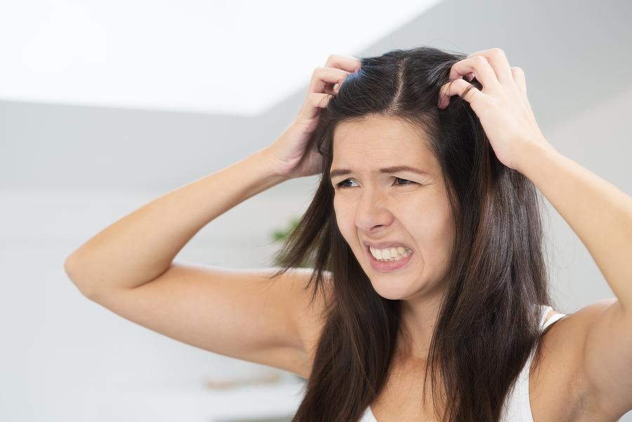 Combattere i capelli grassi e la forfora